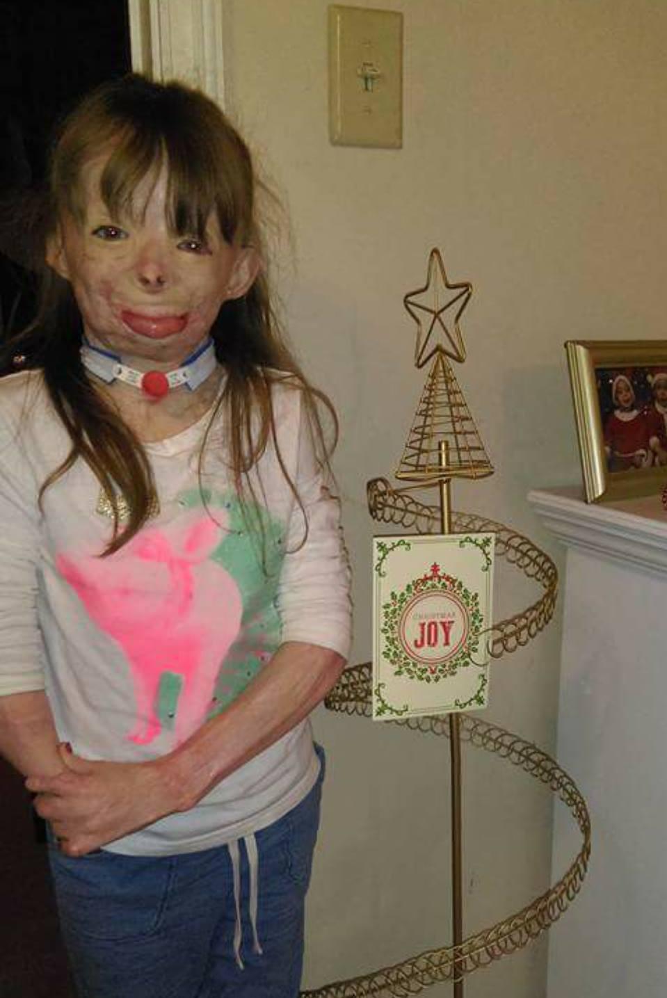 bambina sopravvissuta incendio 3