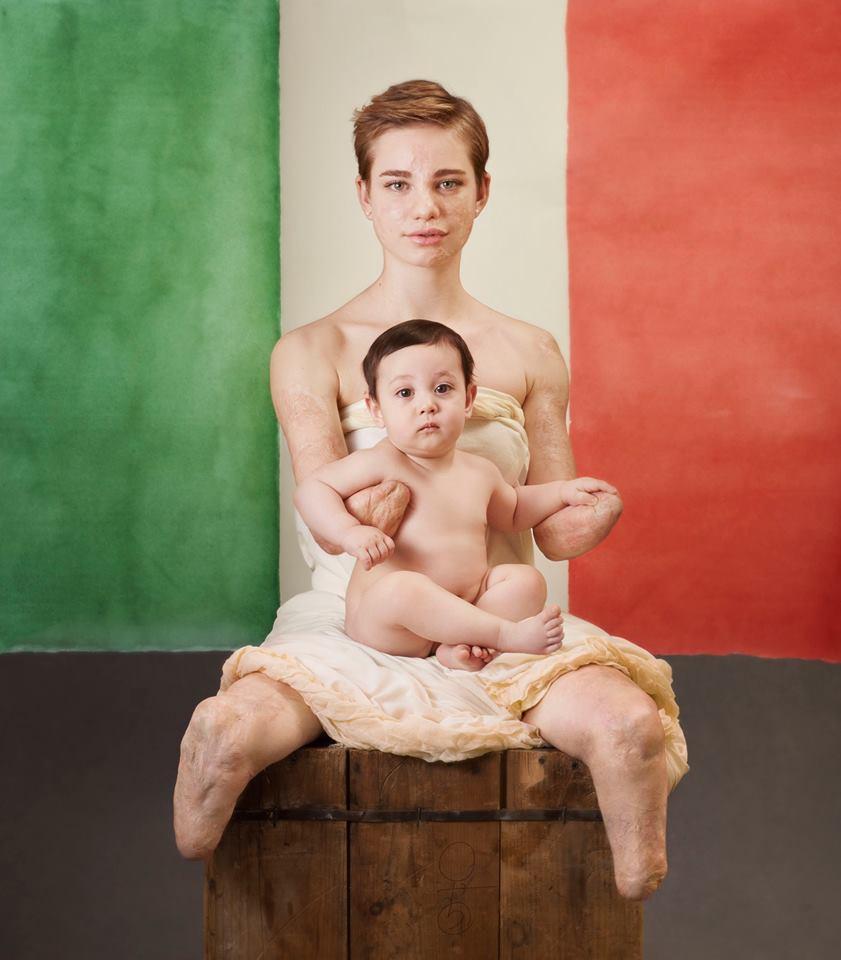 La fiorettista Bebe Vio con Vincent