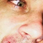 Robbie Williams si è spaccato il labbro e ha bisogno di coccole