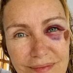"""Licia Colò su Facebook: """"Ho fatto un brutta caduta, ma mi è andata bene"""""""