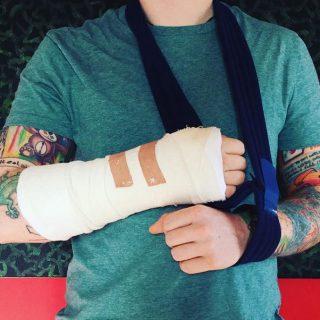 Ed Sheeran, incidente in bicicletta: frattura al braccio