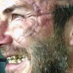 David Beckham irriconoscibile: spaventosa cicatrice sul viso
