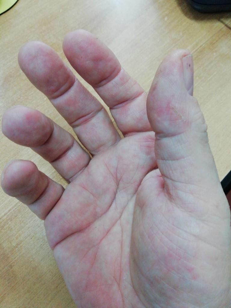 La mano di Roberto, 61 anni