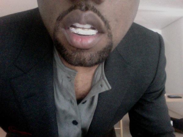 Denti di diamante