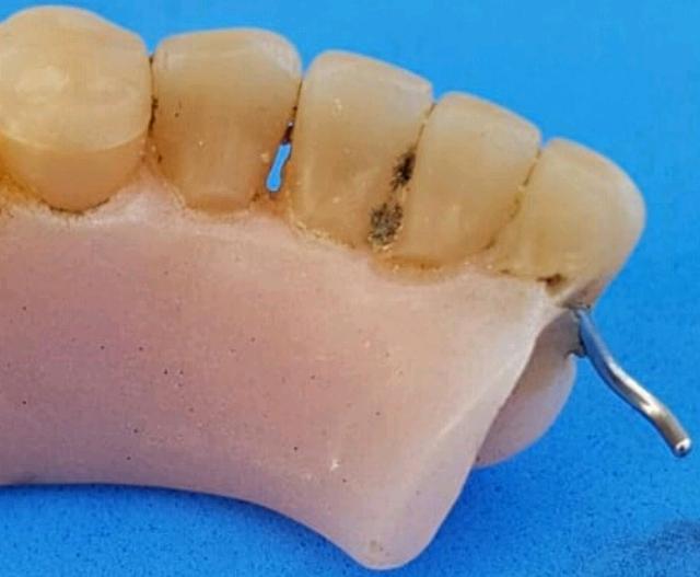 ischia-dentiera