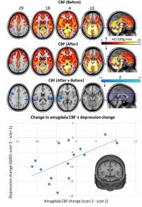 Il flusso sanguigno nel cervello un giorno prima e dopo l'uso di psilocibina, con cambiamenti nell'amigdala. Carhart Harris, R et al. Scientific Reports 2017