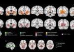 Immagini del cervello degli adolescenti che avevano fatto uso una o due volte di cannabis tramite Risonanza magnetica: aumentato il volume di alcune aree cerebrali