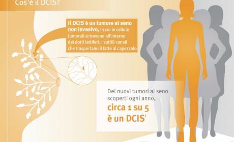 I test genomici per il carcinoma duttale in situ (DCIS)