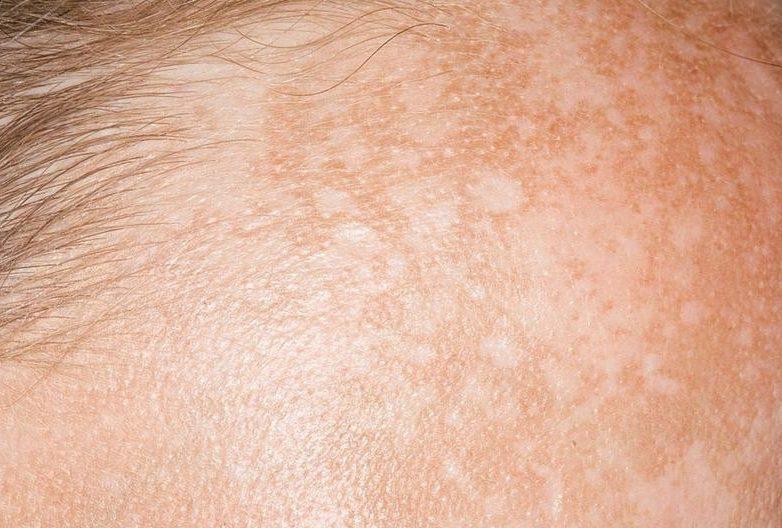 Macchia scura sulla pelle? Ecco come eliminarla   OK Salute