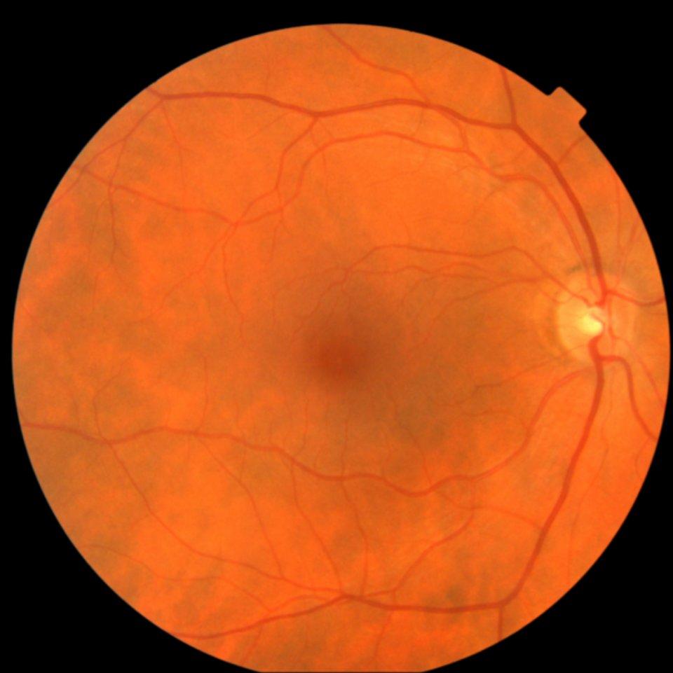 Google ha un modo per predire il tuo rischio di infarto: scansionando i tuoi occhi