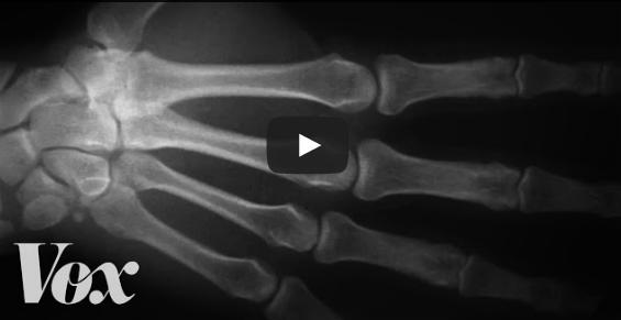 Scrocchiarsi le dita è dannoso? Un esperimento lungo 6 anni ha dato la risposta