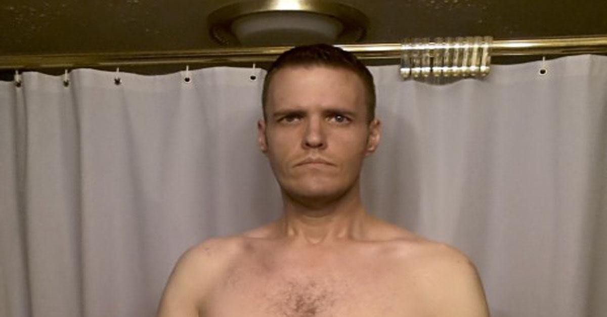 """""""Questo è cosa rimane"""". Storia di Brian, ex-obeso che ha perso 165 chili in 18 mesi"""