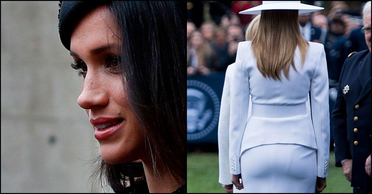 Il viso di Meghan, il lato B di Melania Trump: cosa chiedono le italiane al chirurgo