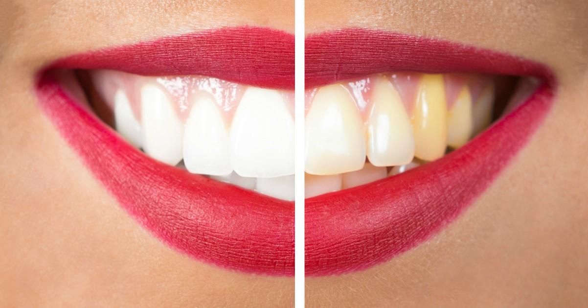 I cibi che fanno bene ai denti (e quelli invece da evitare per non rovinarli)