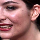 """Lo sfogo di Lorde su Instagram: """"L'acne fa schifo"""" e i consigli non richiesti pure"""