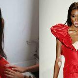 Victoria's Secret: tra le modelle scelte per il prossimo show c'è Winnie Harlow