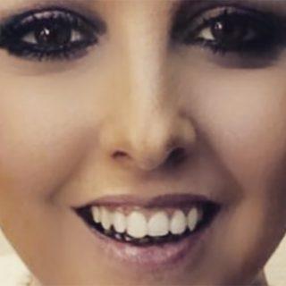 """Nadia Toffa si mostra senza parrucca: """"Ho tutto un lato pelato"""""""