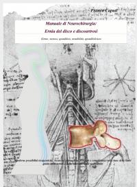 Ernia del Disco e Discoartrosi