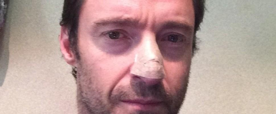 Hugh Jackman, un tumore della pelle: Fate i controlli
