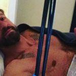 Striscia la Notizia, aggredito Edoardo Stoppa: operato a una spalla