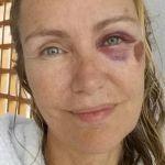 Licia Colò, occhio pesto ed ecchimosi: brutta caduta per la conduttrice
