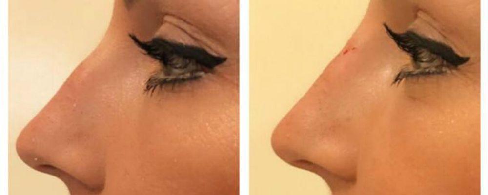 Tara Gabrieletto si è rifatta il naso: le foto del ritocchino