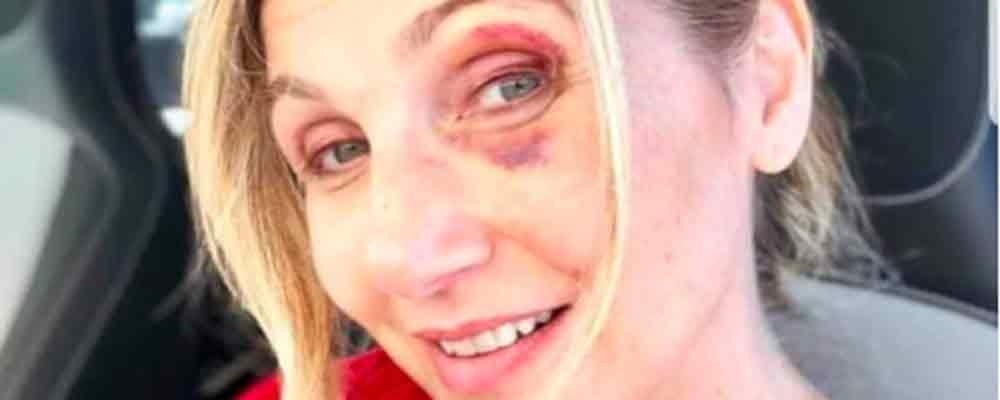 """Incidente a piedi per Lorella Cuccarini: """"Tutta colpa di una buca"""""""