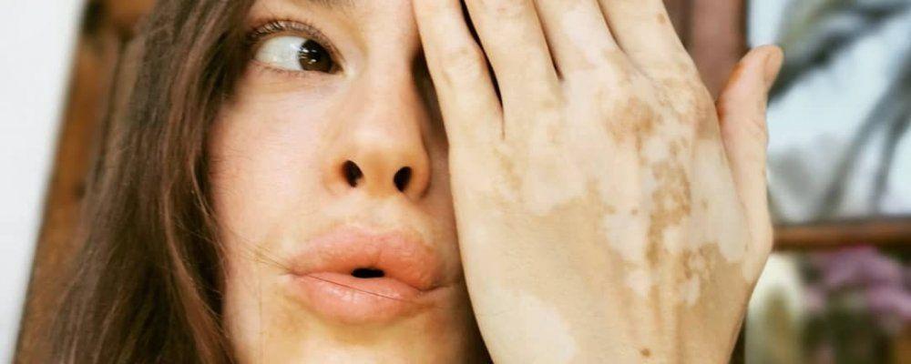 Kasia Smutniak: 'Cosa dico alla vitiligine? Non oggi'