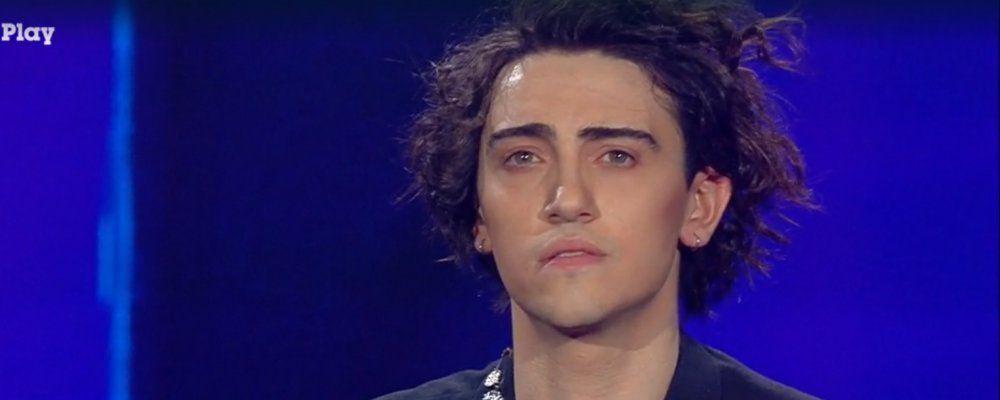 Amici Speciali, Michele Bravi dopo l'incidente: 'Ho una faccia diversa'