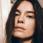 Kasia Smutniak e la malattia: 'Per guarire dalla vitiligine sono finita dai santoni'