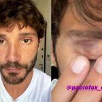 Made in Sud, Stefano De Martino in onda con un occhio nero: è stato un colpo di testa