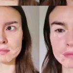 Kasia Smutniak crea il filtro vitiligine su Instagram: 'Le macchie fanno parte di te'