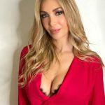 Laura Cremaschi, la Bonas mostra l'acne: 'Mi vergognavo a uscire di casa'