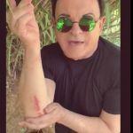 Cristiano Malgioglio mostra le ferite inflitte dalle oche e parte il secondo round