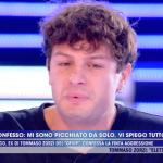 Live, Marco Ferrero 'Iconize' e la finta aggressione: 'Così mi sono procurato i lividi'