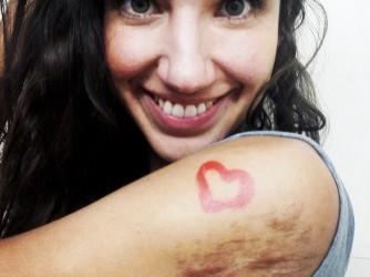 Nicole porta addosso le cicatrici del suo incidente