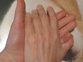 Le mani di Francesca e Anna una sull'altra