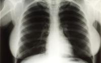 monroe radiografia