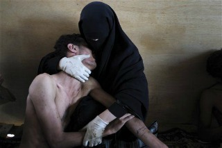 Samiel Aranda, A woman holding a wounded relative in her arms, inside a mosque used as a field hospital by demonstrators against the rule of President Ali Abdullah Saleh, during clashes in Sanaa, Yemen on 15 October 2011. Foto vincitrice del WPP 2012
