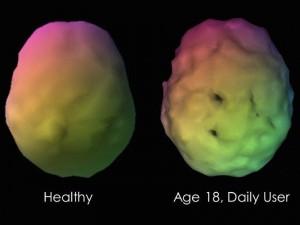 Cannabis cervello