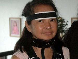 Gloria Arroyo con il collare per la distrofia