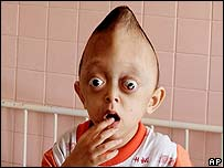 il piccolo viet Xuan Minh deformato dall'Agente Orange