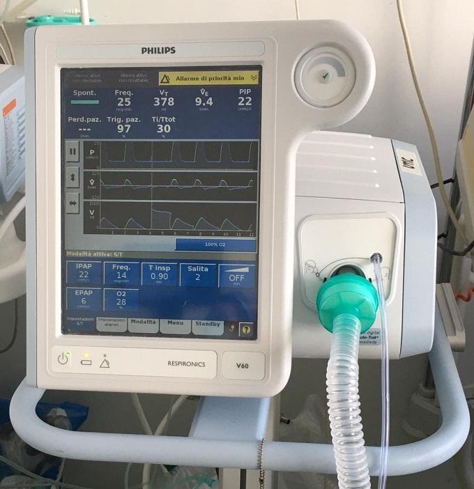 Modello ventilatore polmonare
