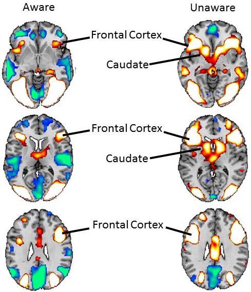 L'attività del cervello visto alla Risonanza magnetica funzionale nell'esperimento con fobici alle prese con immagini di ragni. Come si vede molto maggiore è l'attivazione quando non si è consapevoli (a destra) rispetto a immagini di cui si è consapevoli (a sinistra)  CREDIT Foto di Bradley Peterson