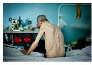 Un paziente affetto da tubercolosi