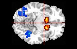 La RMN del cervello: i colori giallo/rossi indicano l'attività in pazienti con sinotmi psicotici nell'area del cervello del nucleo del caudato