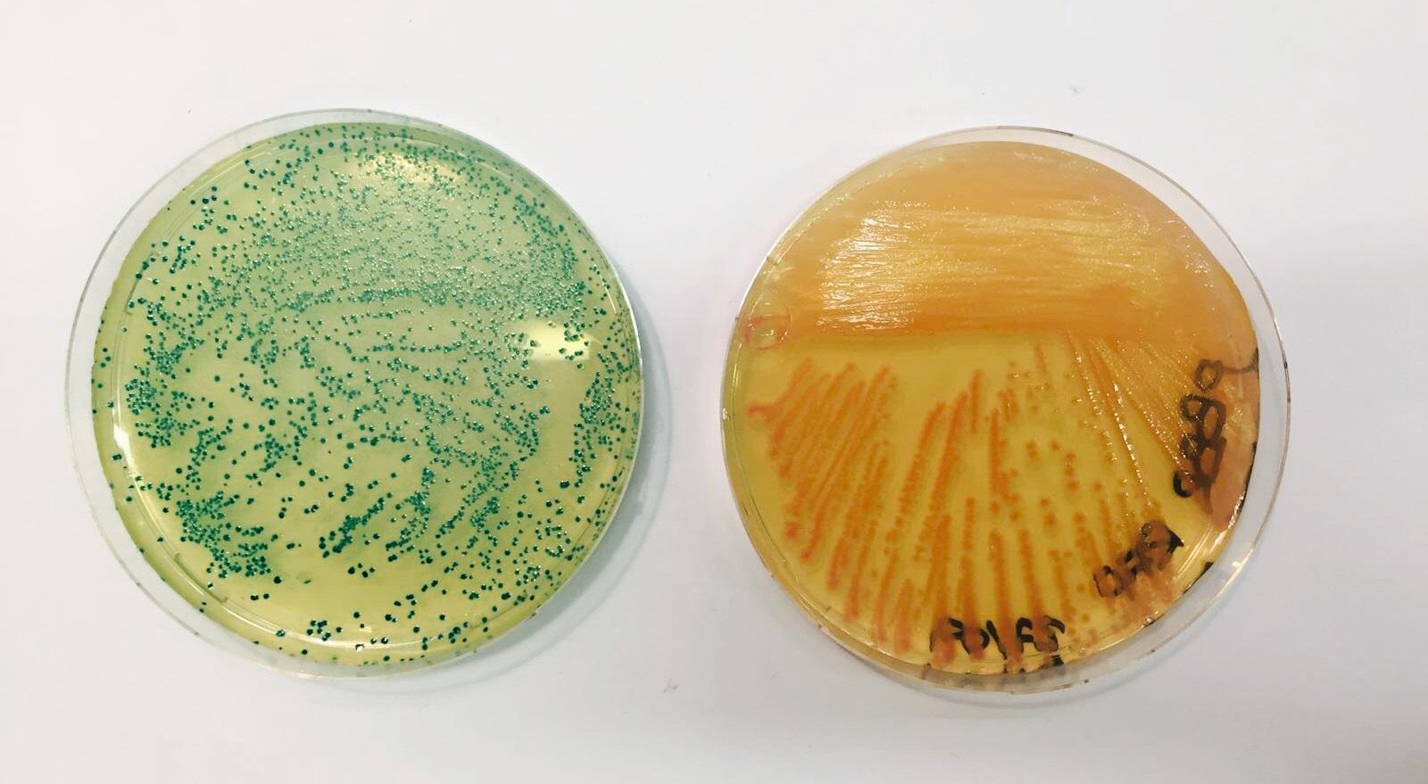 Batteri che esprimono proteine ricombinanti
