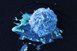 La genetica svela dieci diversi tipi di tumore al seno