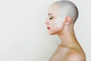 Capelli ricci dopo la chemio