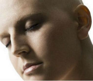 Tumore al seno metastatico, come reagire al corpo che cambia